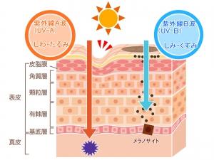 紫外線は日焼けの原因